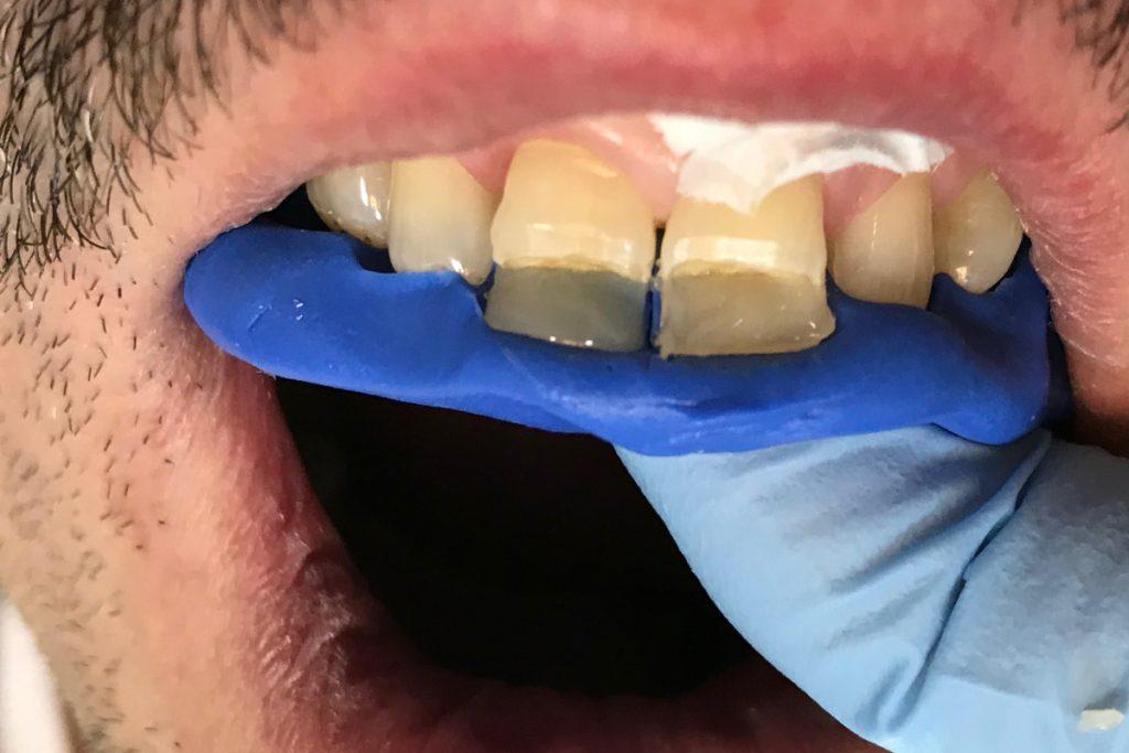 indeks sylikonowy do odbudowy zęba